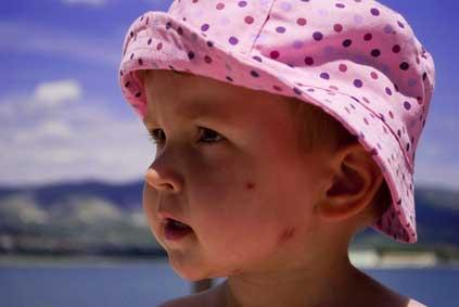 La piqûre d'insecte: savoir réagir et protéger l'enfant accueilli